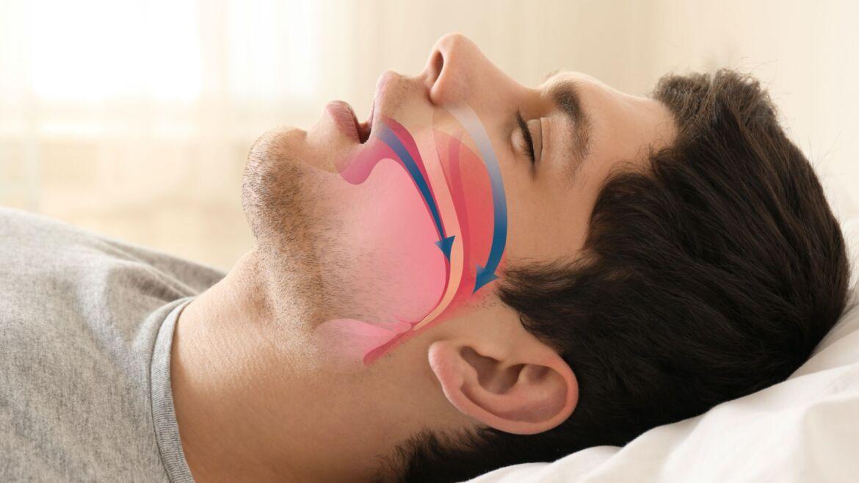 Clínica de ronquido y apneas del sueño